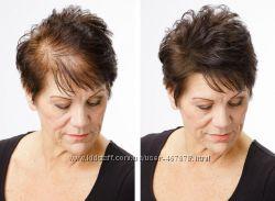 ТОППИК - загуститель волос, косметическое средство для маскировки залысин
