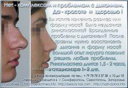 коррекция носа